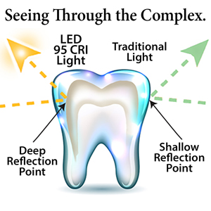 light traveling through tooth layers pic